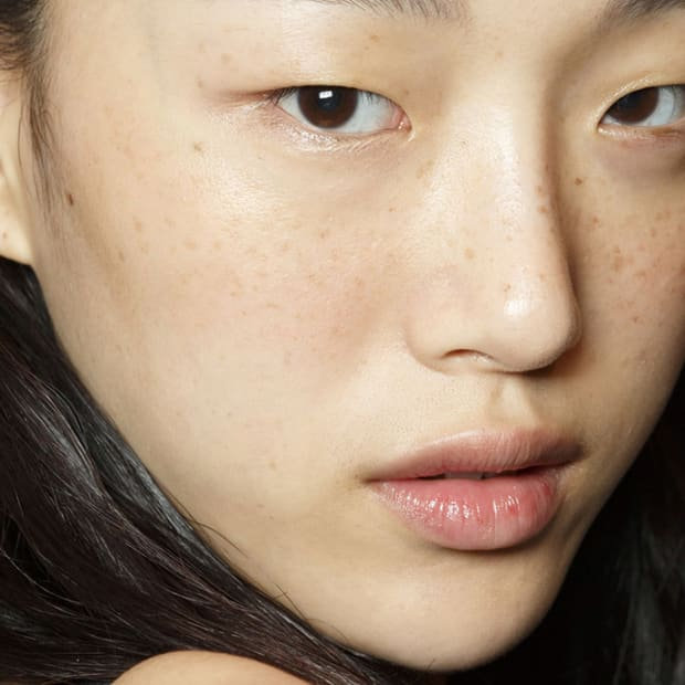 How to Pop a Pimple the Right Way - The Skincare Edit