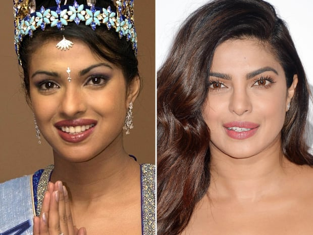 Priyanka Chopra, Before and After - The Skincare Edit