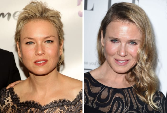What Renee Zellweger Did To Her Face According To Plastic