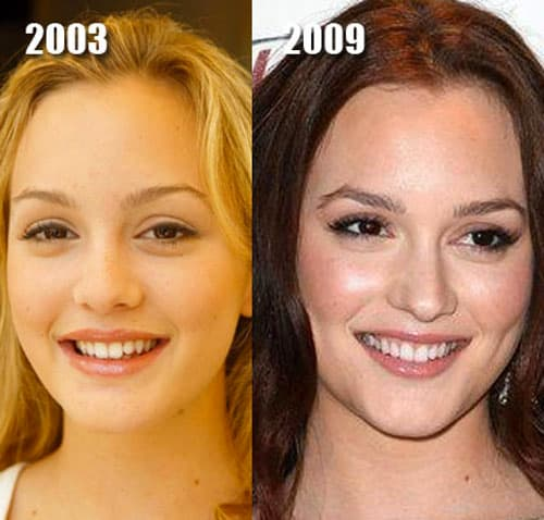Best Places In The World To Have Plastic Surgery: These Celebs Are Examples Of Good Plastic Surgery