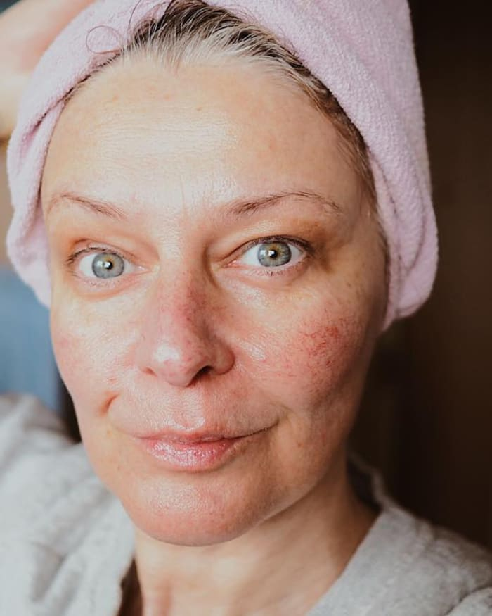 Sensitive Skin: Sensitive Skin: What Causes It And The Best Way To Treat