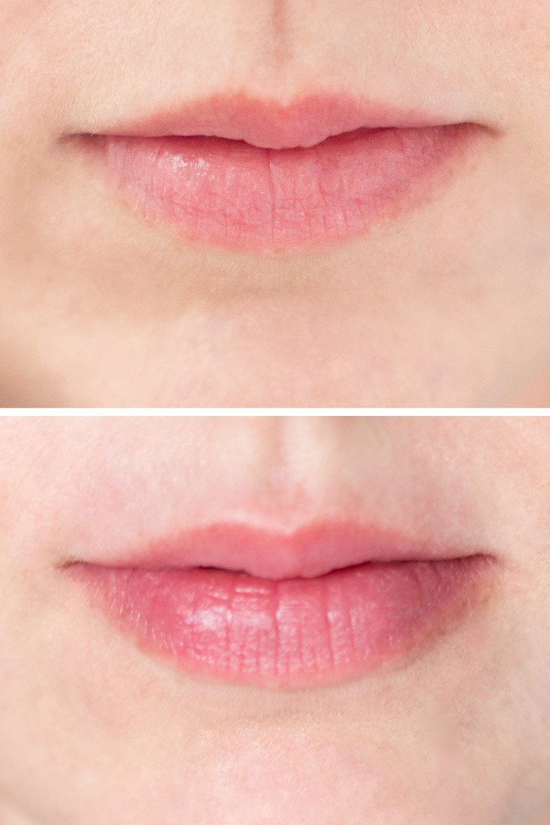 PMD Kiss: Best Lip Plumper Device for Full Lips Without