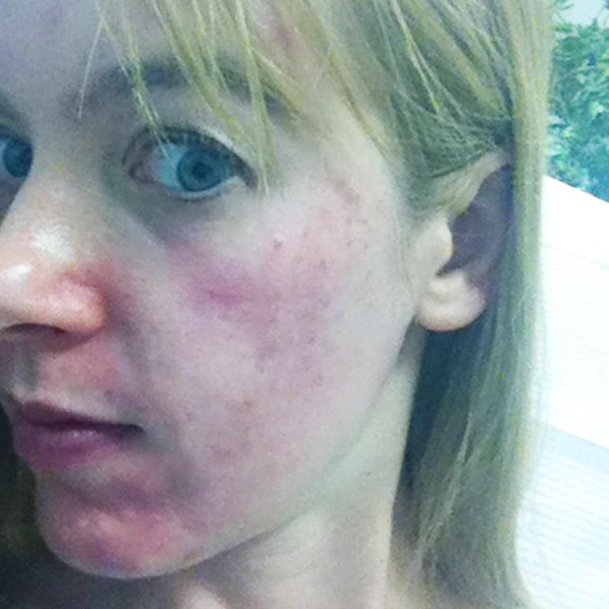 What It S Like To Get An Ipl Treatment For Skin Pigmentation The Skincare Edit