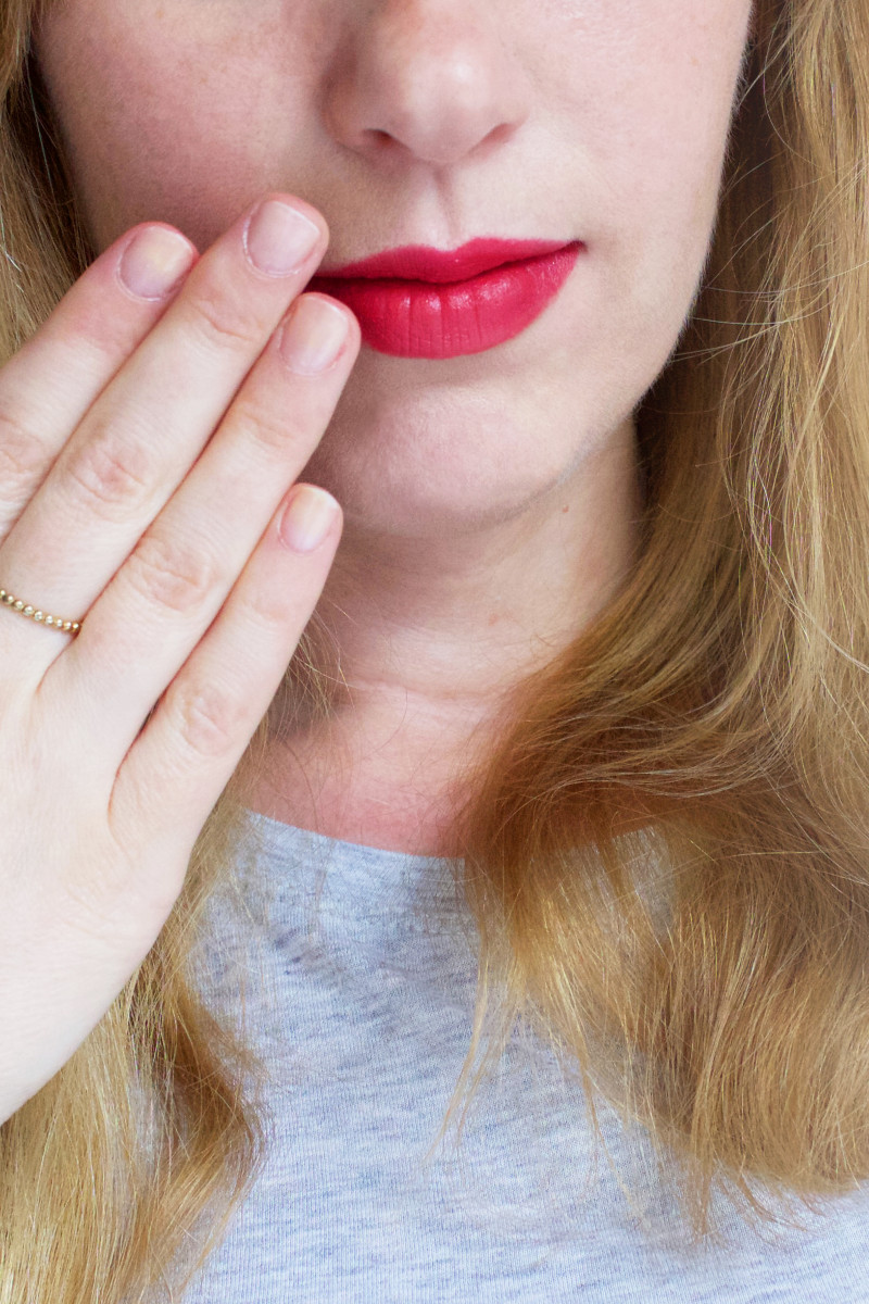 How to Treat Cold Sores: 5 Things You Need to Do When You Get One