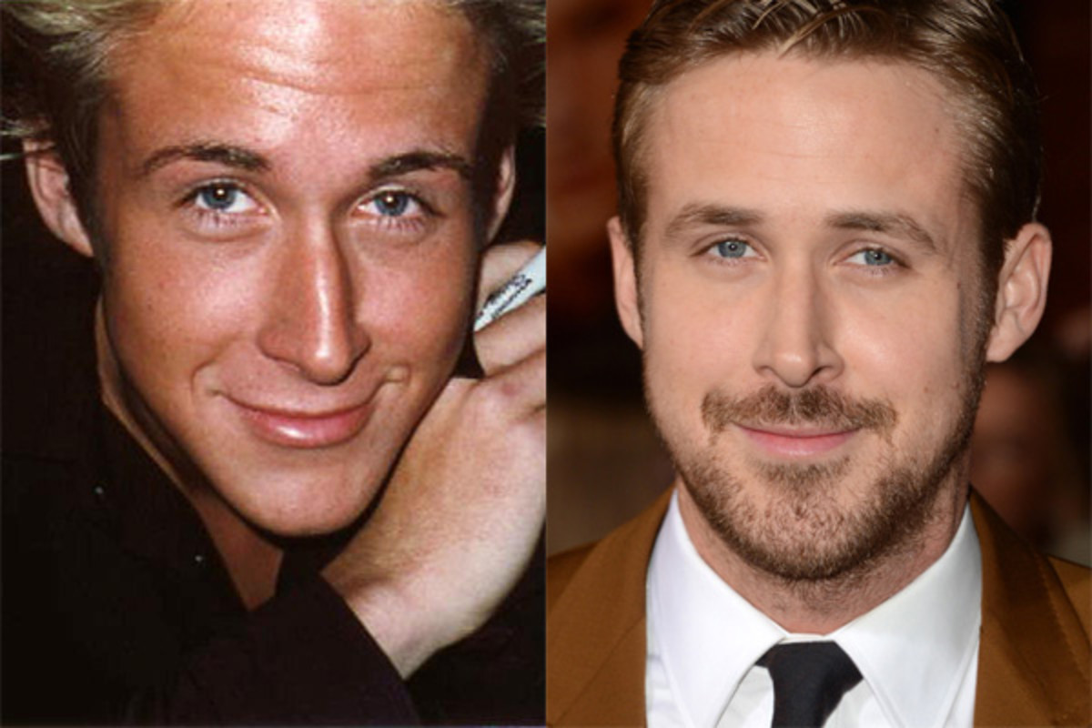 Ryan Gosling, Before and After - The Skincare Edit