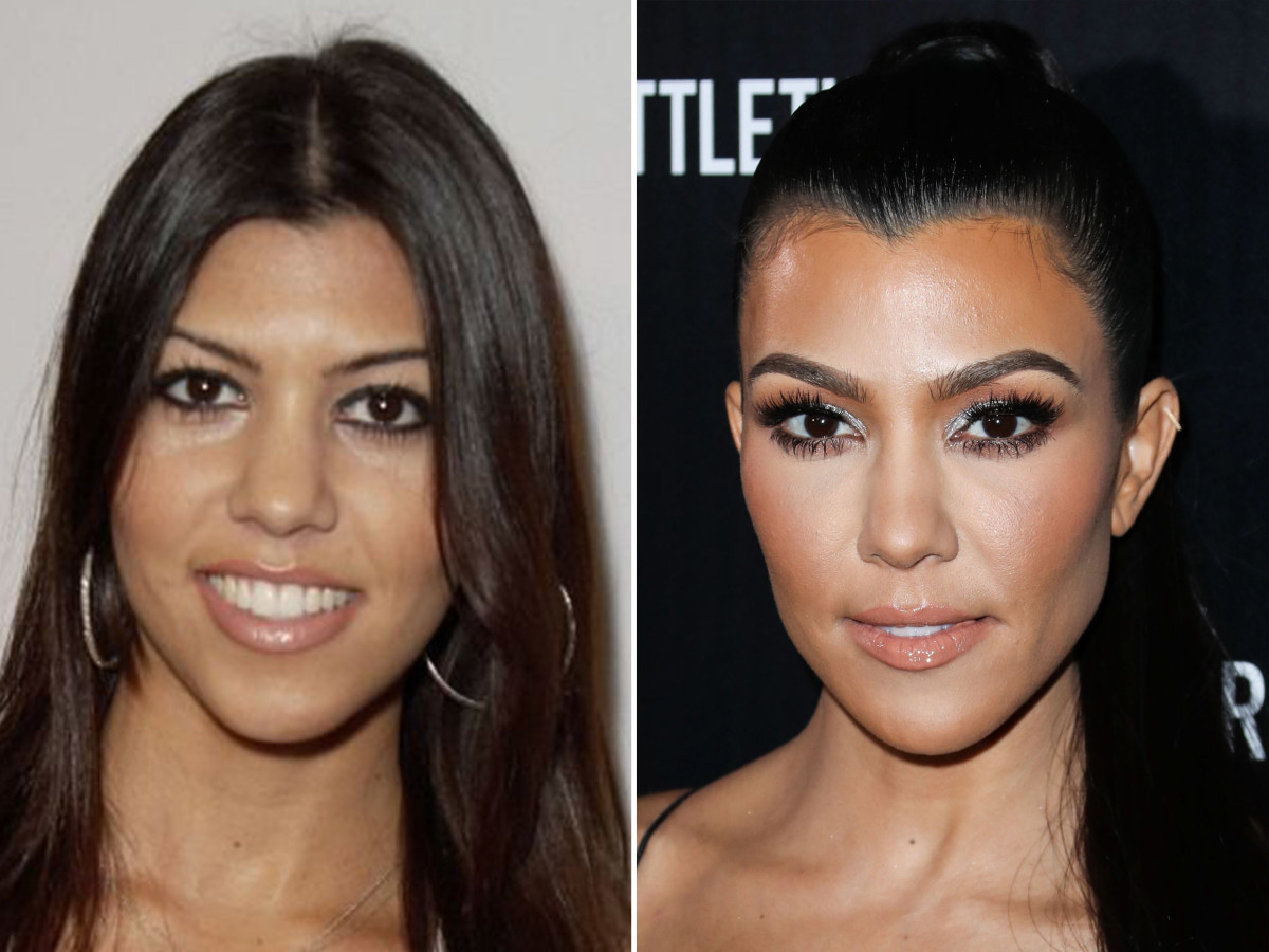 Kourtney Kardashian before and after