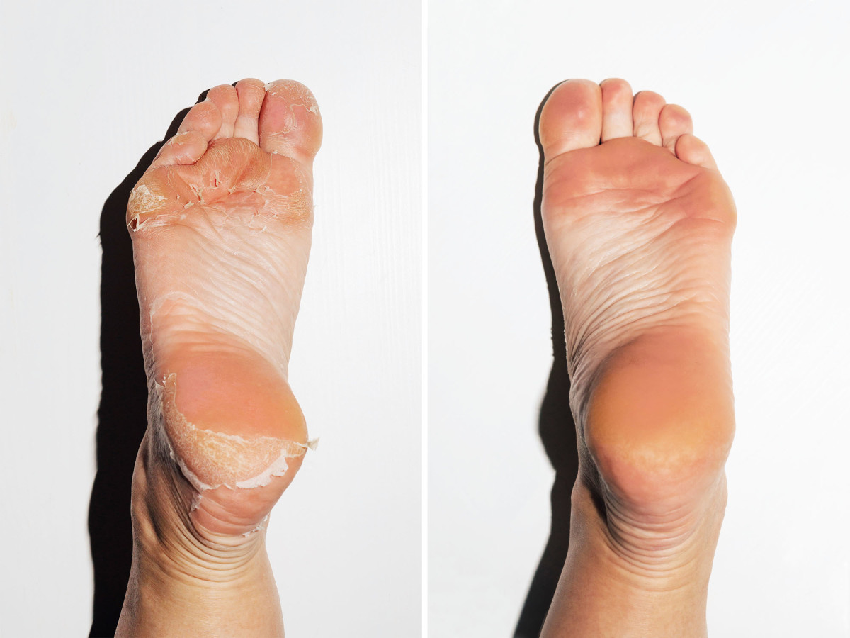 Baby Foot peel before and after