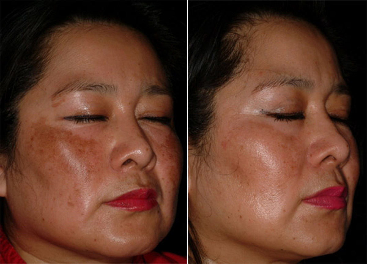 Melasma before and after niacinamide