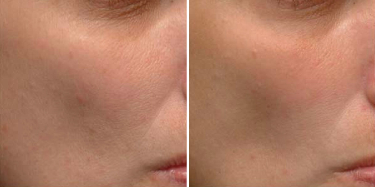 Pores before and after niacinamide
