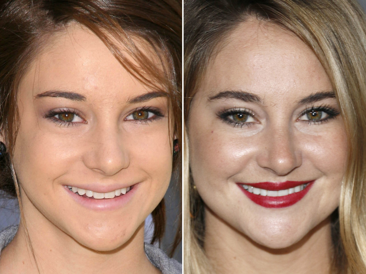 Shailene Woodley before and after