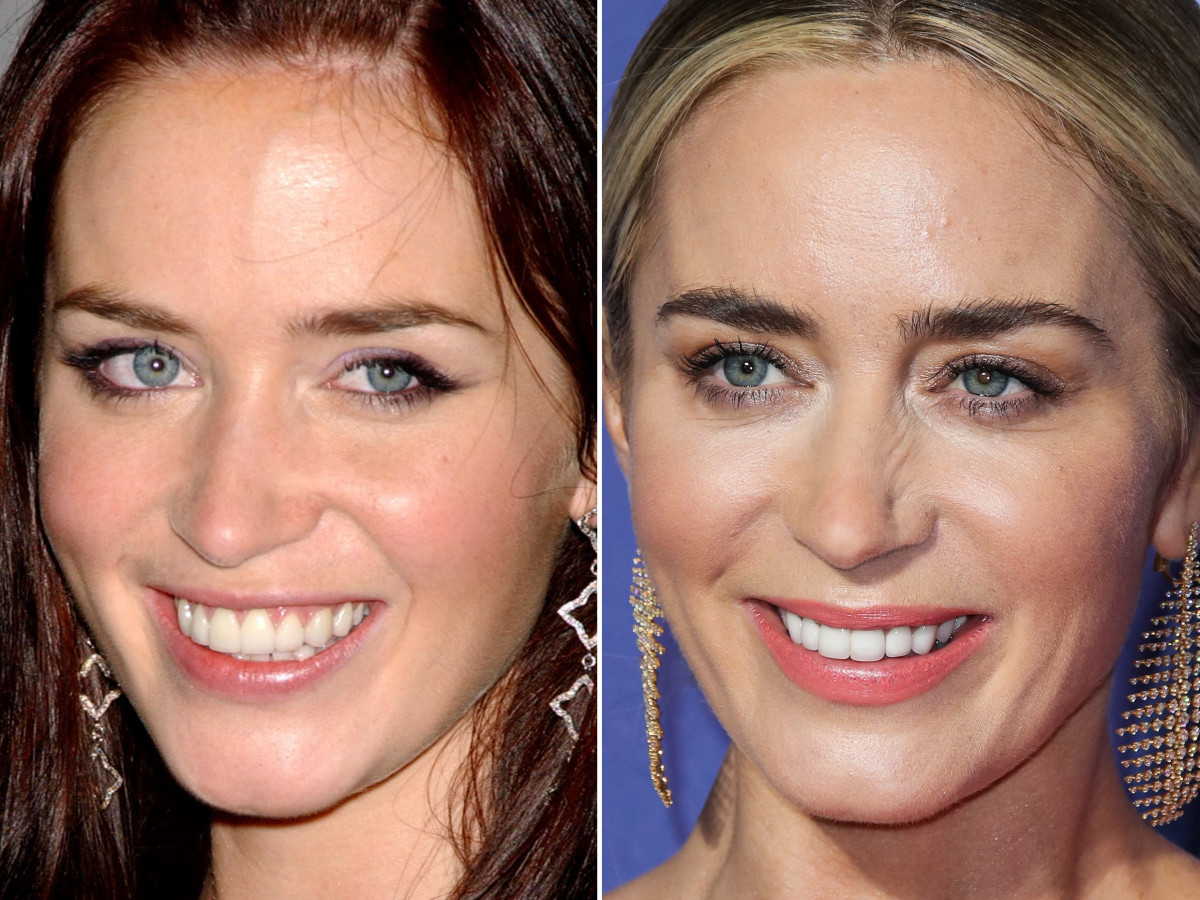 Emily Blunt before and after